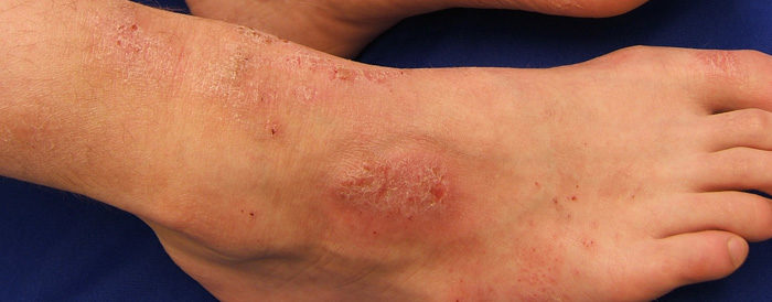 How To Treat Eczema And Dry Skin Winter Itch