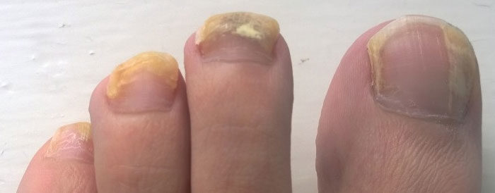 What the color of your toenails can tell you about your health
